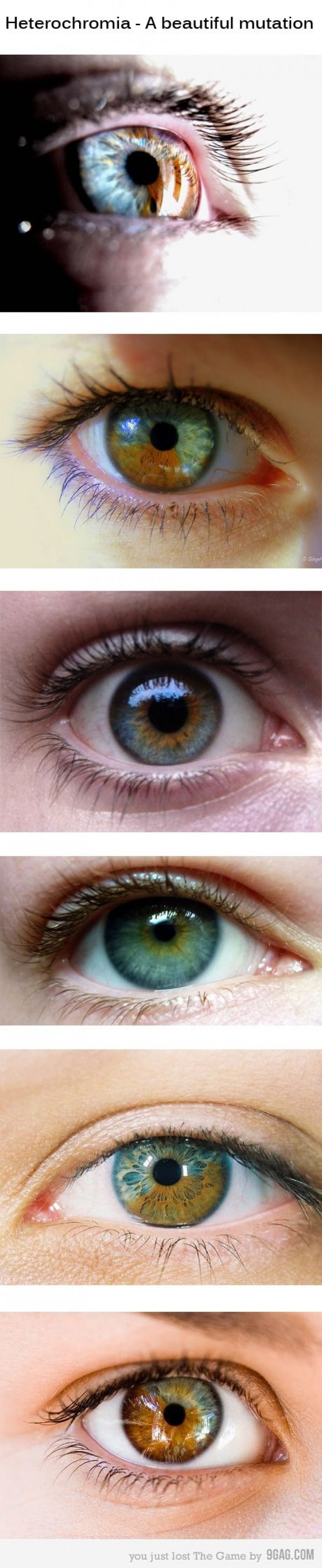Heterochromia A Beautiful Mutation