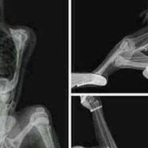 When Your Girlfriend Is A Radiologist